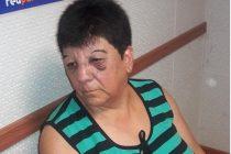 Rosa Rodriguez y una denuncia por golpes y agresión de parte de su vecino